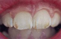 children-dentistry-1
