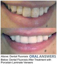 children-dentistry-2