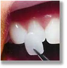 children-dentistry-3