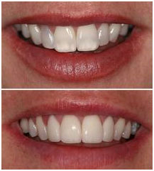 children-dentistry-4