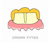 crowns-and-bridges-6