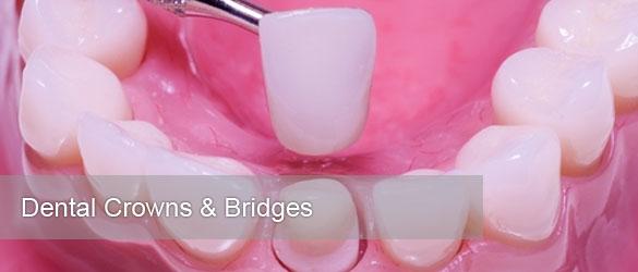 crowns-and-bridges