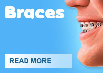 intro-braces