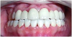 orthodontics-10