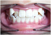 orthodontics-5