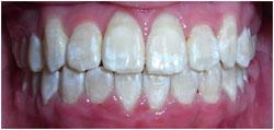 orthodontics-7