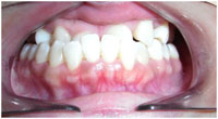 orthodontics-8