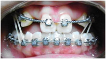 orthodontics-9