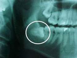 wisdom-tooth-surgery-1