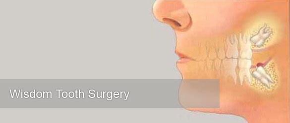 wisdom-tooth-surgery