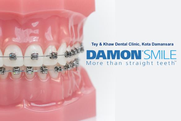 Tey & Khaw damon-braces